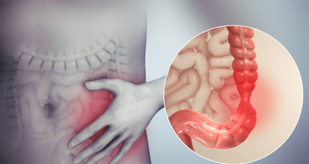 Causes for irritable bowel syndrome