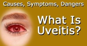 What is the best treatment for Uveitis